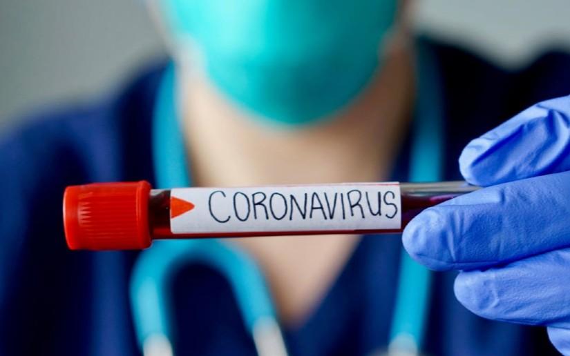Nicaragua registra más de 6,500 casos de coronavirus, según el Minsa - Vos  TV