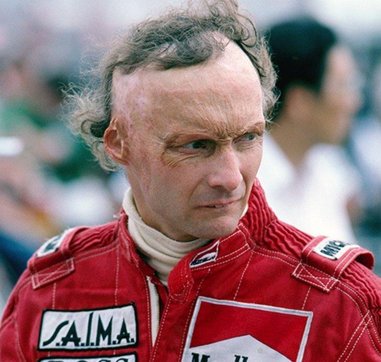Así quedo el austriaco con injertos de piel tras el accidente de 1976